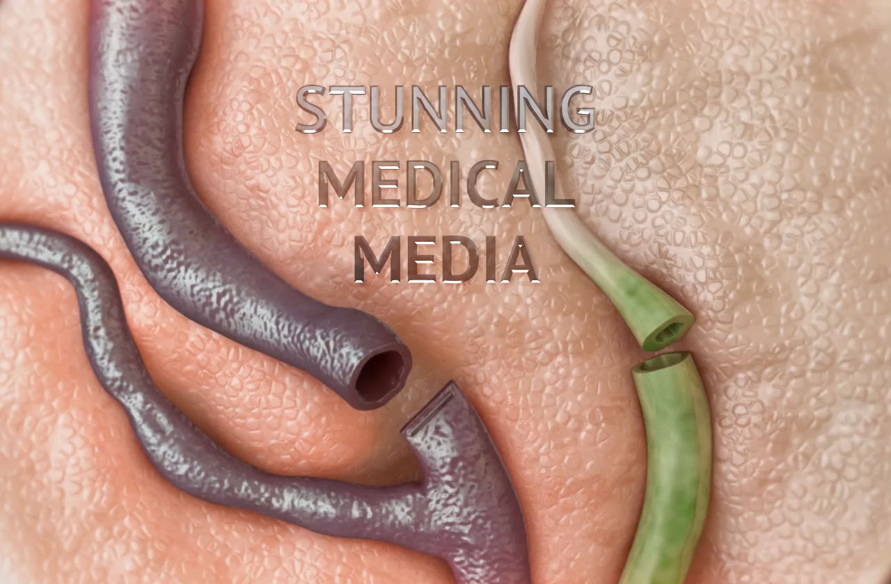 Visual Health Solutions: Stunning Medical Media